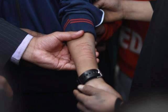 कम अंक ल्याएको भन्दै विद्यार्थीको हात चिर्न लगाउने शिक्षिका पक्राउ